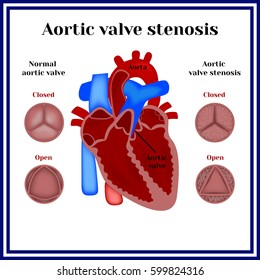 Aortic valve stenosis.