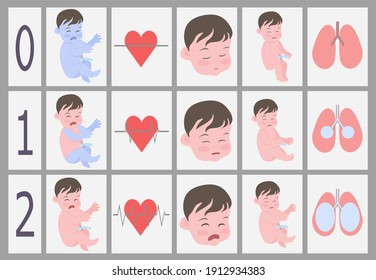 Apgar scale.Assessment of a newborn baby on the Apgar scale.Skin color,breathing,reflexes,muscle tone,palpitations.Important signs of the vitality of a newborn baby in the table.