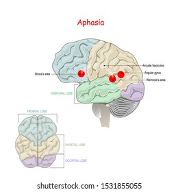 Aphasia. is an inability to comprehend or formulate language. Human Brain with damage to specific areas.