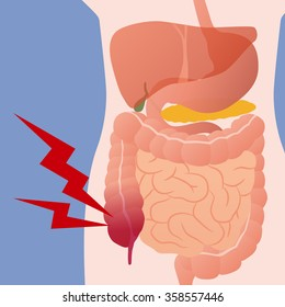 appendicitis and human digestive organs, vector illustration