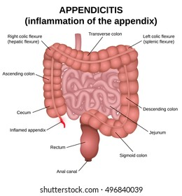 Appendicitis, an inflammation of the appendix, colon and small intestine of man, poster medical scheme