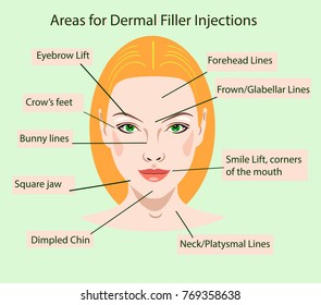 Areas for dermal filler injections