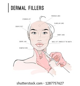 Areas for dermal filler injections. Doctor hands in gloves with syringe. Skin care. Fashion woman sketch. Spa beauty concept. Hand drawn vector illustration.