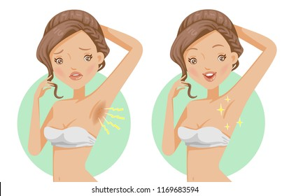Armpit hair care. dark and whitening skin. before and after. clean or care woman armpit, female hairy armpit, Laser innovation beauty and cosmetics. The contradictory emotions. vector illustration.
