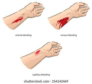 Arterial and venous bleeding