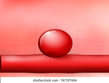 artery with an aneurysm on red background. vector  Illustration for medical use. easy editable for Your color