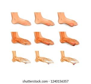 arthritis, arthrosis of the big toe