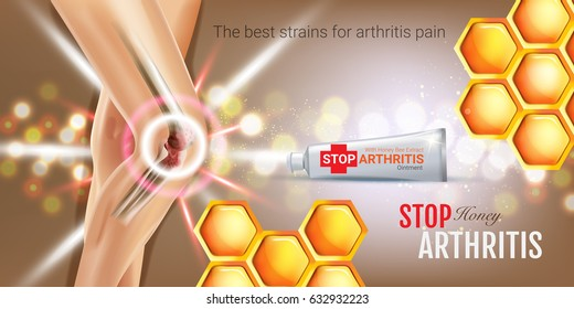 Arthritis Pain Relief Ointment ads. Vector 3d Illustration with Tube cream with honey extract. Horizontal banner with product's package.