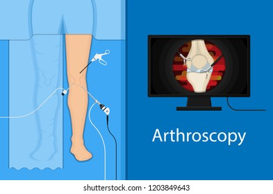 Arthroscopy medical treatment surgery keyhole surgical treat endoscope Anterior cruciate ligament  ACL orthopedic Hip Ankle Elbow