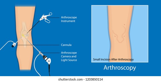 Arthroscopy medical treatment surgery keyhole surgical treat endoscope Anterior cruciate ligament  ACL orthopedic Hip Ankle Elbow