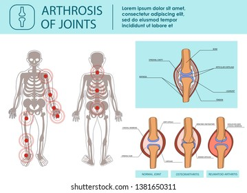 Arthrosis of Joints. Health Joint and damaged by Arthritis. Disease of Joints. Arthritic Joins, Rrheumatoid Arthritis, Arthrosis. For advertising and other Medical publications. Vector Illustration.