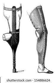 Artificial Legs with Pestle (left) and with Foot (right) for Below-knee Amputation, vintage engraved illustration. Usual Medicine Dictionary by Dr Labarthe - 1885