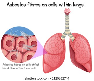 Asbestos Fibres on Cells Within Lungs illustration
