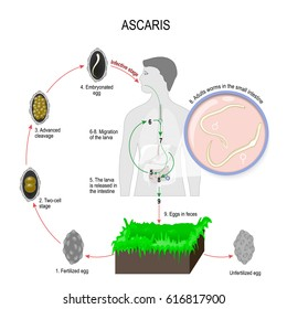 Ascaris lumbricoides life cycle. Silhouette of a man with internal organs. The arrows indicate the direction of worm migration in the human body. Eggs, larva and adult specimens of ascarids