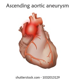 Ascending aortic aneurysm. Damaged heart muscle. Enlargement of a weakened area in the ascending aorta. Anatomy illustration. Colorful image, white background.