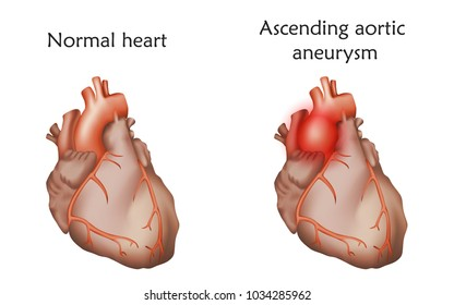 Ascending aortic aneurysm. Damaged and normal heart muscles. Anatomy illustration. Colorful image, white background.