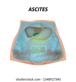 Ascites Free fluid in the abdominal cavity. Infographics. Vector illustration on isolated background.