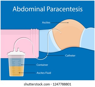 Ascites Paracentesis medical procedure diagnostic abdominal bacteria treatment therapy drainage