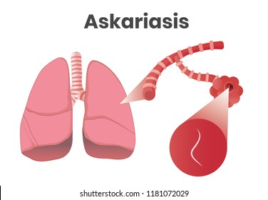 Askaris disease. Vector illustration of the larvae inside alveoli
