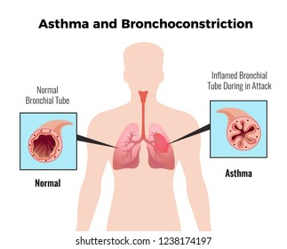 Asthma attack medical educative chart poster with depiction of normal and inflamed bronchial tube flat vector illustration