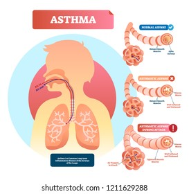 Asthma vector illustration. Lungs and bronchi disease with breathing problems diagram. Asthmatic and normal airway cross section with labeled structure and symptoms.
