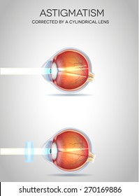 Astigmatism and Astigmatism corrected by a cylindrical lens. Eye vision disorder