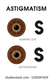 Astigmatism. Eye disease. Vector information illustration with brown eyes.