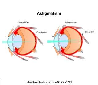 Astigmatism. Eye vision disorder.Diagram of the eye