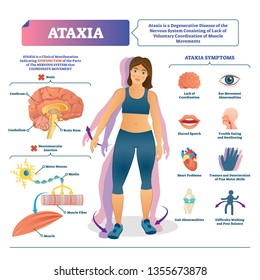 Ataxia vector illustration. Labeled medical movement brain disorder scheme. Neurological problem with cerebellum abnormal illness. Educational diagnosis symptoms list with brain structure infographic.