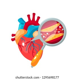 Atherosclerosis concept. Human heart and zoomed artery with plaque. Medical vector illustration in flat style