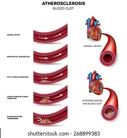 Atherosclerosis. Detailed illustration of Atherosclerosis stages, normal heart and damaged heart muscle as a result of the blood clot.