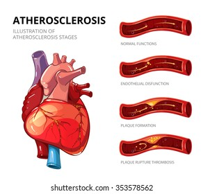 Atherosclerosis. Fibrous plaque formation. Medical human, health graphic, thrombus in vessel. Vector illustration infographic