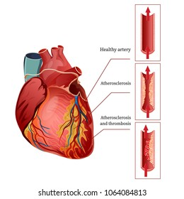 Atherosclerosis. Illustration of the human heart. Healthy artery. Atherosclerosis and thrombosis. Vector.