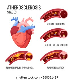 Atherosclerosis stages. Normal functions, endothelia disfunction, plaque formation, plaque rupture thrombosis. Arteriosclerotic vascular disease or ASVD, artery-wall thickens vector illustration