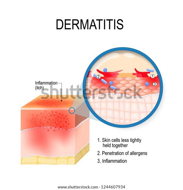 Atopic dermatitis (atopic eczema). Cross-section of human skin with dermatitis. Close-up of skin cells, and penetration of allergens. Vector illustration for medical, biological, and educational use
