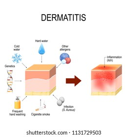 Atopic dermatitis (atopic eczema). Healthy skin, factors that cause this disease, and cross-section of human skin with dermatitis. Vector illustration for medical and educational use
