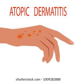 Atopic dermatitis health,  medical,  skin,  pain,  dermatitis,  eczema