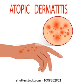 Atopic dermatitis health,  medical,  skin,  pain,  dermatitis,  eczema.