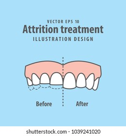 Attrition treatment comparison illustration vector on blue background. Dental concept.