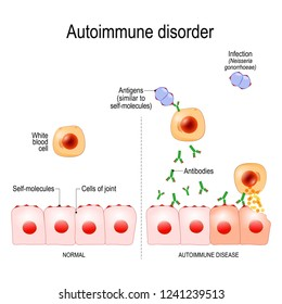 Autoimmune disorders. For example Gonorrhea (sexually transmitted infection) and Arthritis. Antigens of bacterium Neisseria gonorrhoeae are similar to self-molecules of healthy joint cells