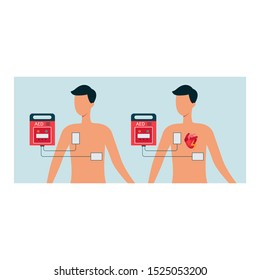 Automated external defibrillator with human and man body, aed concept for heart. Electric shock from aed, cardiac equipment and cardiology, flat vector illustration.