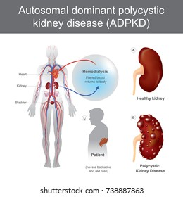 Autosomal Dominant Polycystic Kidney Disease. Have a backache and Acute loin pain, Enlargement of one or more cysts, renal colic, and Acute kidney failure. Medical examination. Illustration vector.