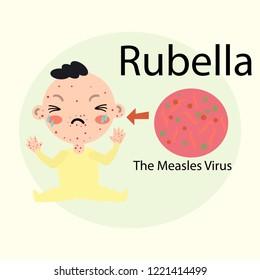 Baby Rubella vector illustration flat Health concept