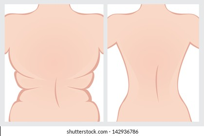 Back before and after treatment. Vector image.