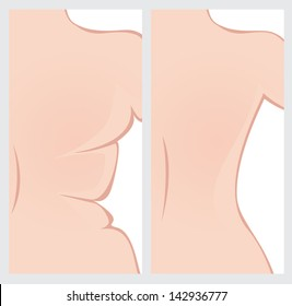 Back right side before and after weight loss. Vector image
