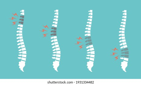 Backache spines set. Back pain vector icon illustration isolated. Damaged Dorsal Disks