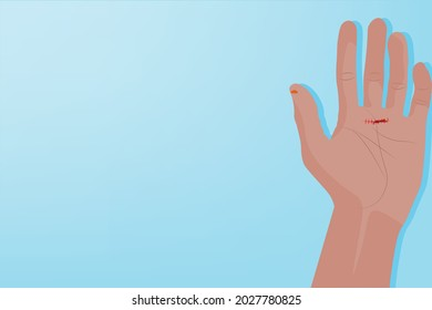 Background of Close up Hand pain with a red scars, Light blue background. Healthcare and Medical concept