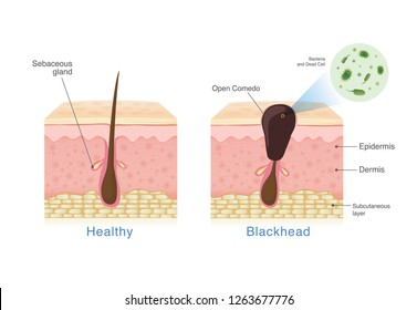 Bacteria in blackhead with human skin layer structure and Healthy skin. Illustration about dermatology diagram .