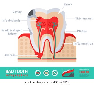 Bad tooth anatomy, flat icon concept infographics. Vector illustration. Infected pulp and nerves, thin enamel, plaque.
