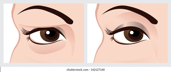 Baggy eyes. Vector image of eye before and after. File with clearly labeled layers for easy editing.